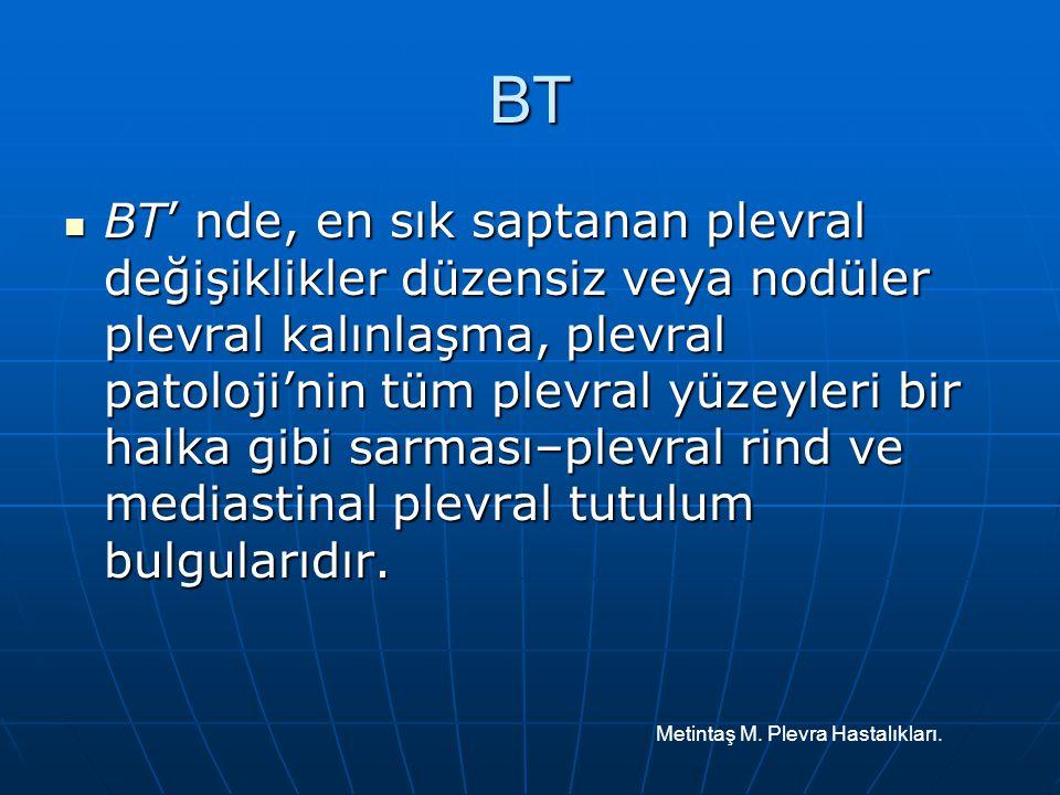 BT BT' nde, en sık saptanan plevral değişiklikler düzensiz veya nodüler plevral kalınlaşma, plevral patoloji'nin tüm plevral yüzeyleri bir halka gibi