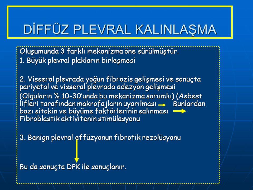 DİFFÜZ PLEVRAL KALINLAŞMA Oluşumunda 3 farklı mekanizma öne sürülmüştür. 1. Büyük plevral plakların birleşmesi 2. Visseral plevrada yoğun fibrozis gel