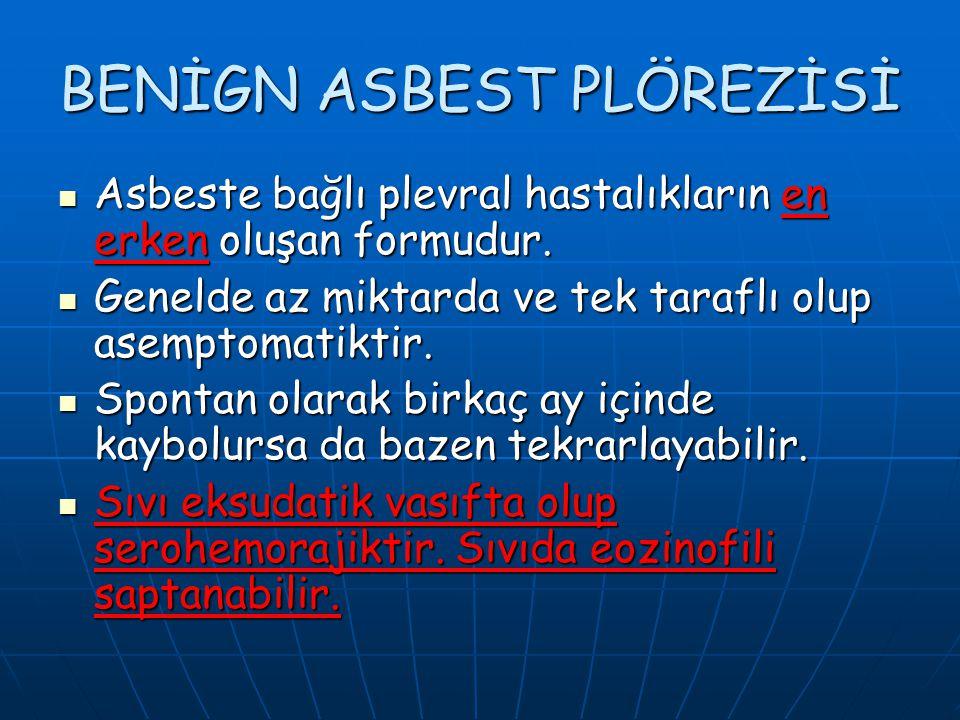 BENİGN ASBEST PLÖREZİSİ Asbeste bağlı plevral hastalıkların en erken oluşan formudur. Asbeste bağlı plevral hastalıkların en erken oluşan formudur. Ge