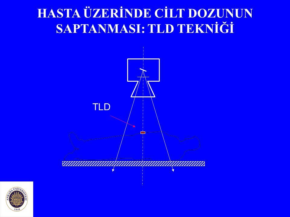 TLD HASTA ÜZERİNDE CİLT DOZUNUN SAPTANMASI: TLD TEKNİĞİ