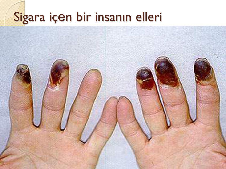 Sigara iç e n bir insanın elleri