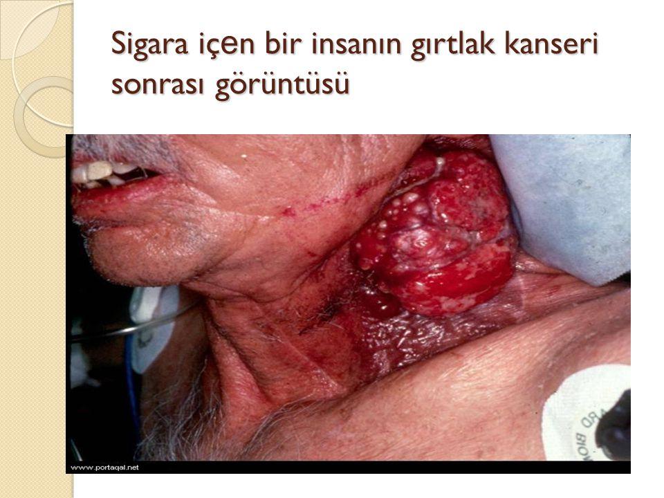 Sigara iç e n bir insanın gırtlak kanseri sonrası görüntüsü