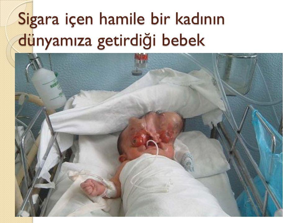 Sigara içen hamile bir kadının dünyamıza getirdi ğ i bebek