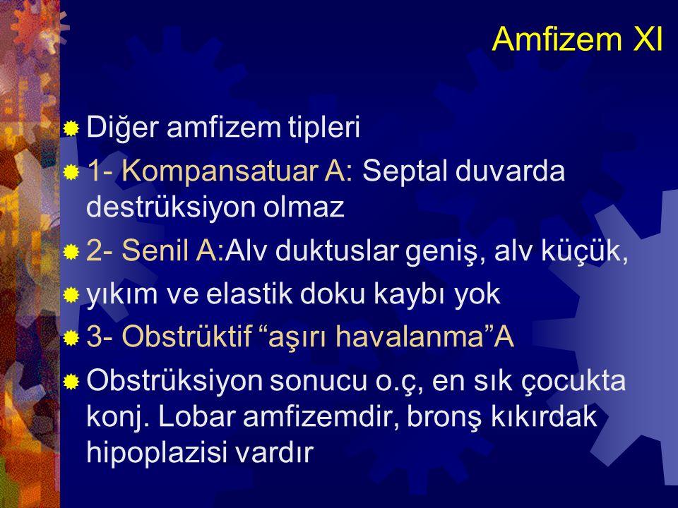 Amfizem XII  4- Büllöz A:Geniş subplevral büller olur  Eski tbc.