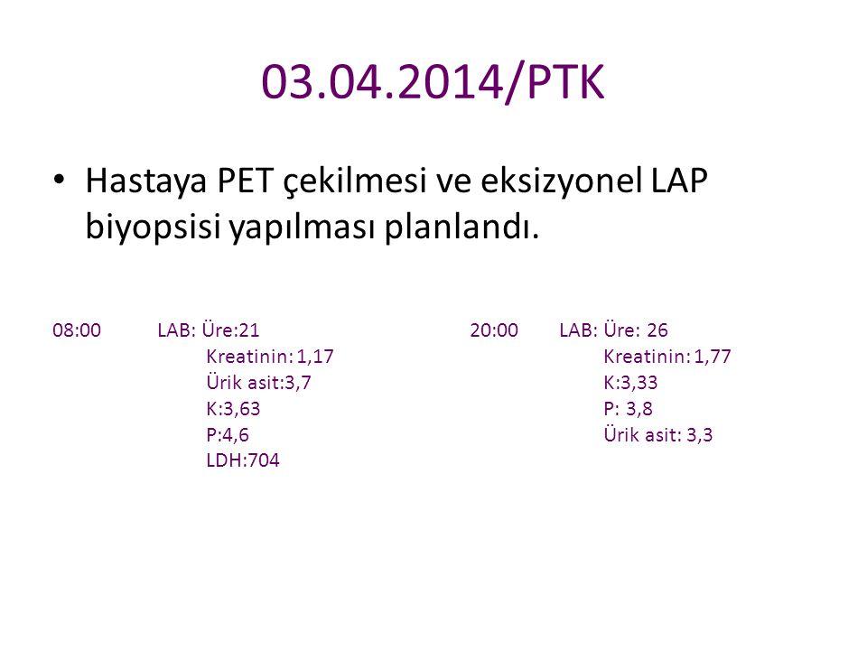 03.04.2014/PTK Hastaya PET çekilmesi ve eksizyonel LAP biyopsisi yapılması planlandı. 08:00 LAB: Üre:21 Kreatinin: 1,17 Ürik asit:3,7 K:3,63 P:4,6 LDH