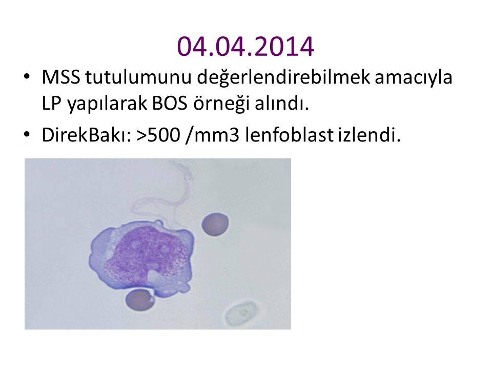 04.04.2014 MSS tutulumunu değerlendirebilmek amacıyla LP yapılarak BOS örneği alındı. DirekBakı: >500 /mm3 lenfoblast izlendi.