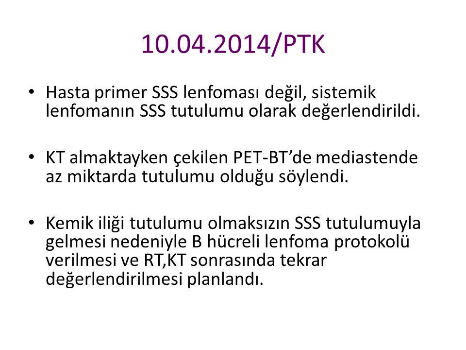 10.04.2014/PTK Hasta primer SSS lenfoması değil, sistemik lenfomanın SSS tutulumu olarak değerlendirildi. KT almaktayken çekilen PET-BT'de mediastende