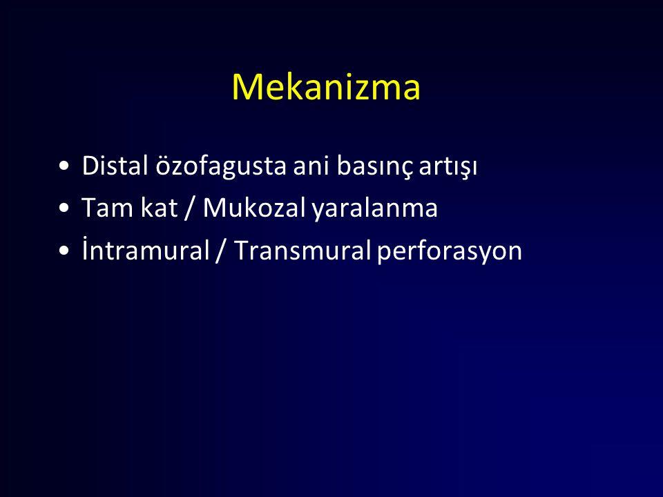 Mekanizma Distal özofagusta ani basınç artışı Tam kat / Mukozal yaralanma İntramural / Transmural perforasyon