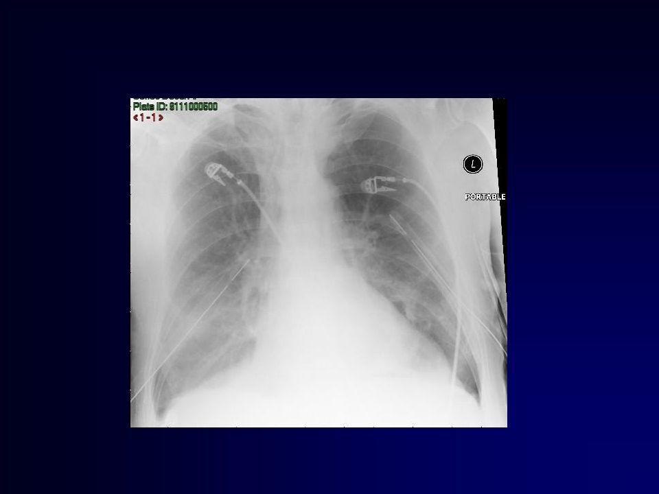 Morbidite %70 komplikasyon oranı Pnömoni ve respiratuar sepsis Reoperasyon Solunum desteği Özofajiyal rekonstrüksiyon
