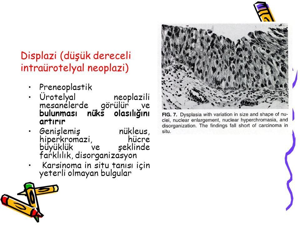 Displazi (düşük dereceli intraürotelyal neoplazi) Preneoplastik Ürotelyal neoplazili mesanelerde görülür ve bulunması nüks olasılığını artırır Genişle