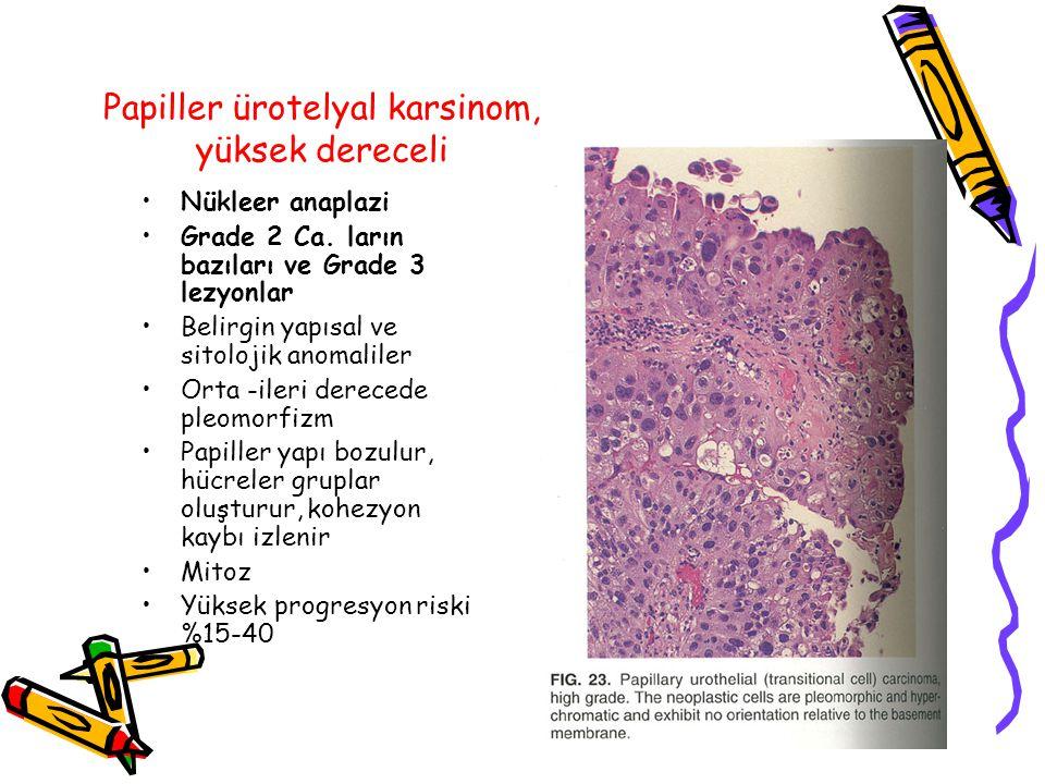 Papiller ürotelyal karsinom, yüksek dereceli Nükleer anaplazi Grade 2 Ca. ların bazıları ve Grade 3 lezyonlar Belirgin yapısal ve sitolojik anomaliler