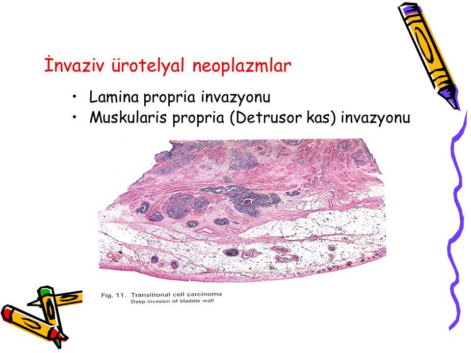 İnvaziv ürotelyal neoplazmlar Lamina propria invazyonu Muskularis propria (Detrusor kas) invazyonu