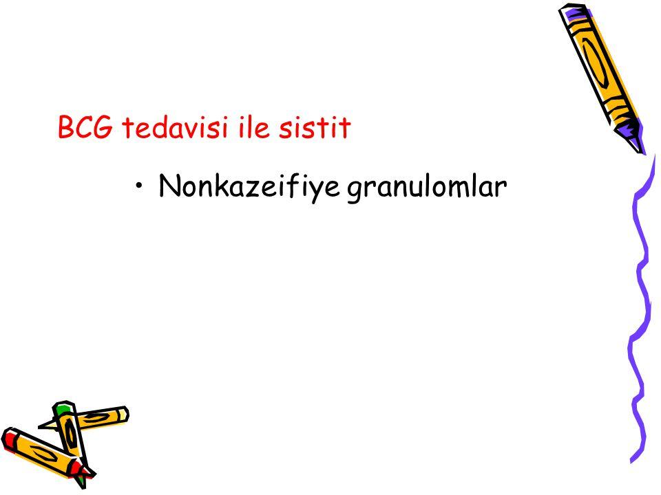 BCG tedavisi ile sistit Nonkazeifiye granulomlar