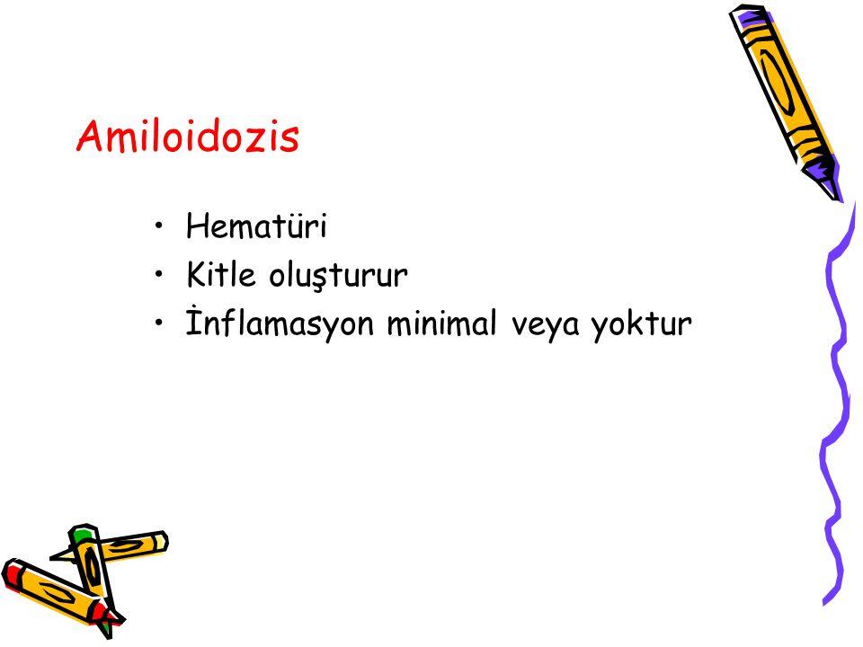 Amiloidozis Hematüri Kitle oluşturur İnflamasyon minimal veya yoktur
