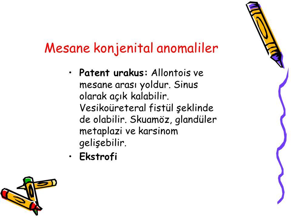 Mesane konjenital anomaliler Patent urakus: Allontois ve mesane arası yoldur. Sinus olarak açık kalabilir. Vesikoüreteral fistül şeklinde de olabilir.