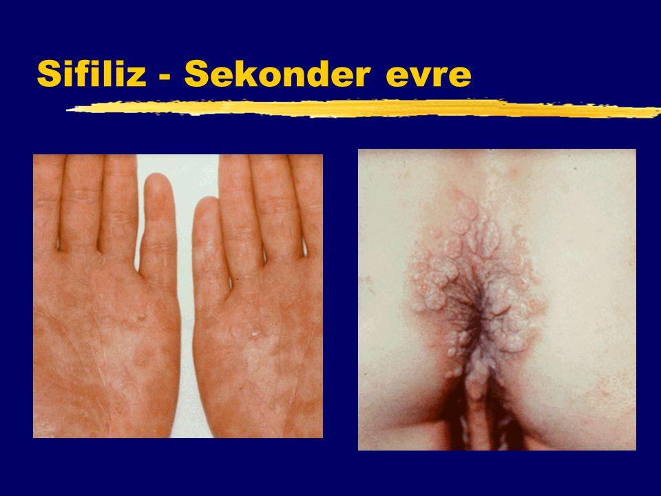 Sifiliz - Sekonder evre