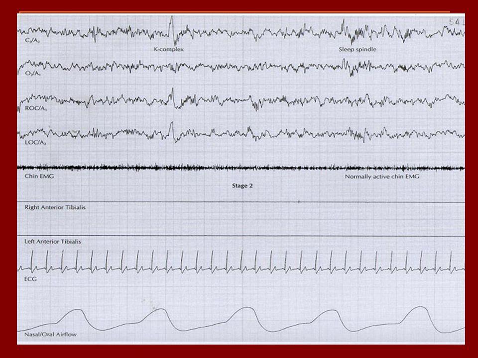 Evre 3 - Evre 4: N3 15-30 dakika sonra Yüksek voltajlı delta dalgaları 3: %20-50, 4: >%50