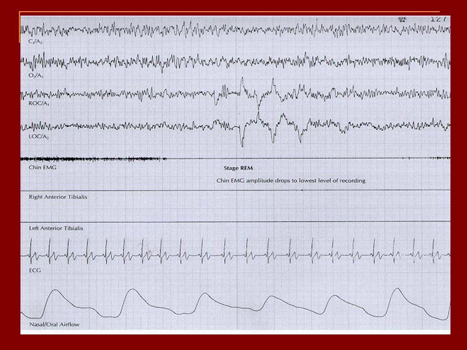 REM Solunum ritmi düzensizleşir Kalp hızı  Kan basıncı değişiklikleri Serebral kan akımı ve metabolizma Arousal eşiğinin en yüksek olduğu evre İdrar volümü ve terleme 