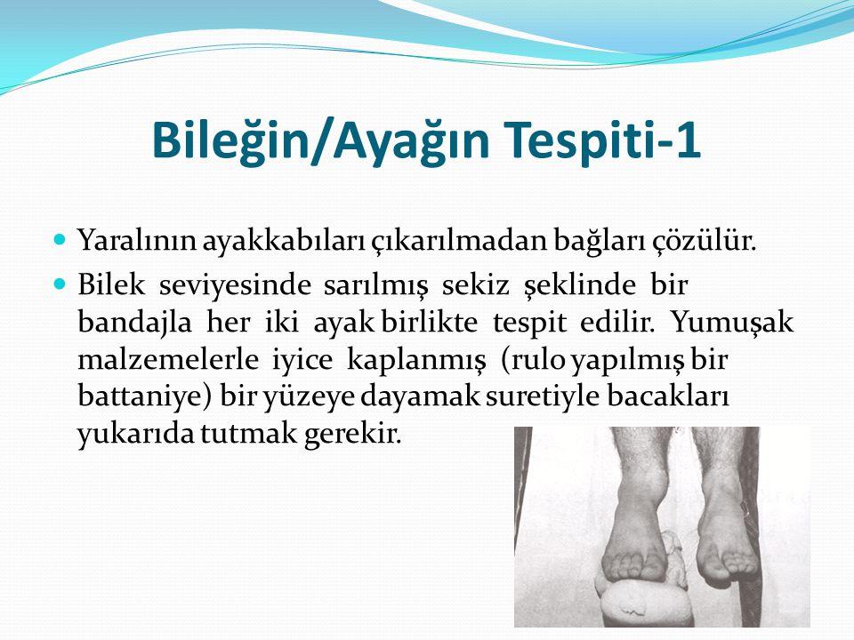 Bileğin/Ayağın Tespiti-1 Yaralının ayakkabıları çıkarılmadan bağları çözülür. Bilek seviyesinde sarılmış sekiz şeklinde bir bandajla her iki ayak birl