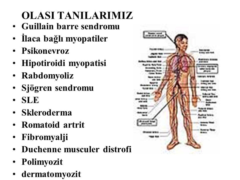 OLASI TANILARIMIZ Guillain barre sendromu İlaca bağlı myopatiler Psikonevroz Hipotiroidi myopatisi Rabdomyoliz Sjögren sendromu SLE Skleroderma Romato