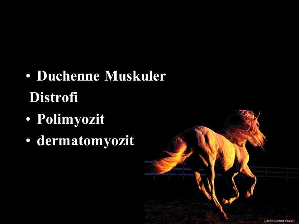 Duchenne Muskuler Distrofi Polimyozit dermatomyozit