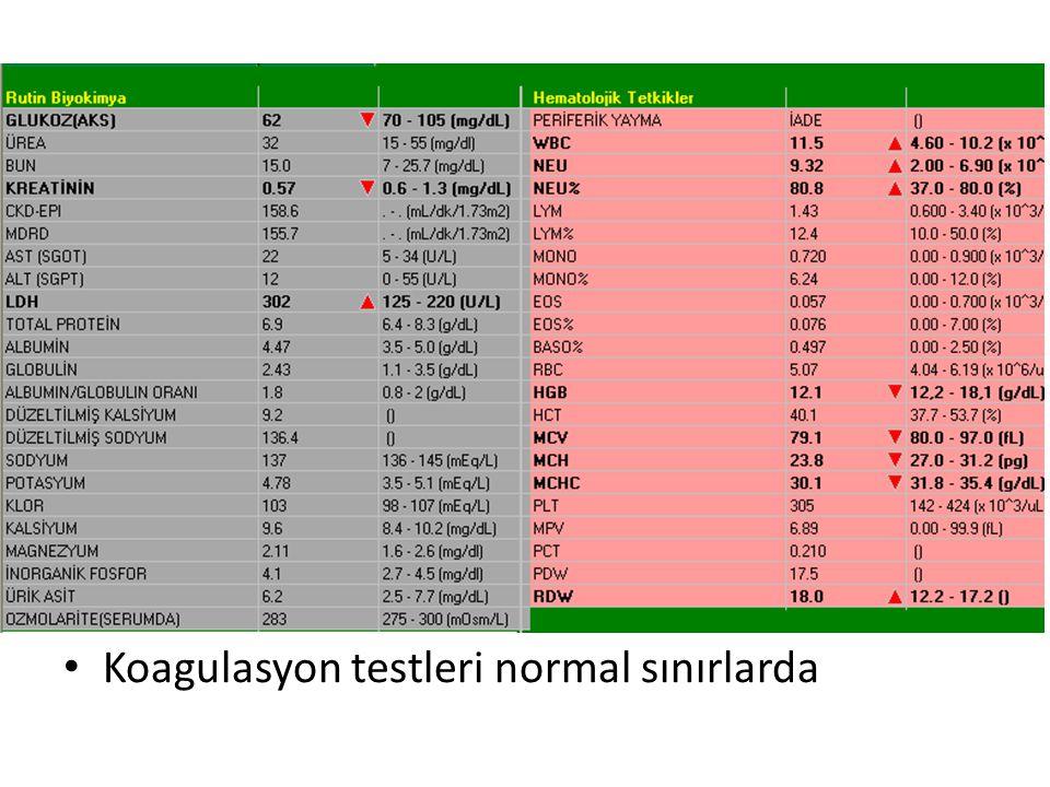 Koagulasyon testleri normal sınırlarda