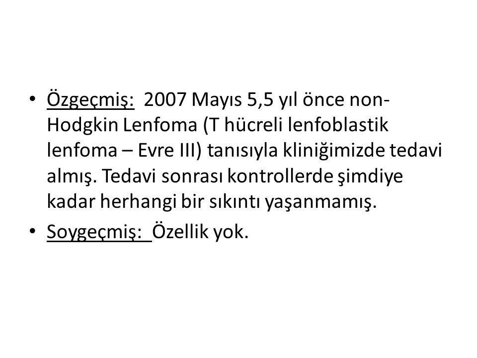 Özgeçmiş: 2007 Mayıs 5,5 yıl önce non- Hodgkin Lenfoma (T hücreli lenfoblastik lenfoma – Evre III) tanısıyla kliniğimizde tedavi almış.