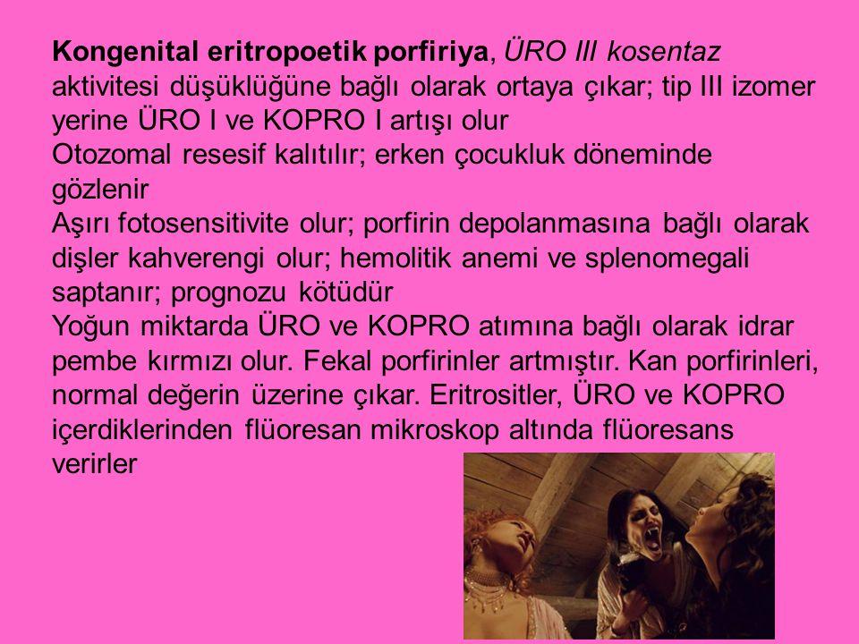 Kongenital eritropoetik porfiriya, ÜRO III kosentaz aktivitesi düşüklüğüne bağlı olarak ortaya çıkar; tip III izomer yerine ÜRO I ve KOPRO I artışı ol