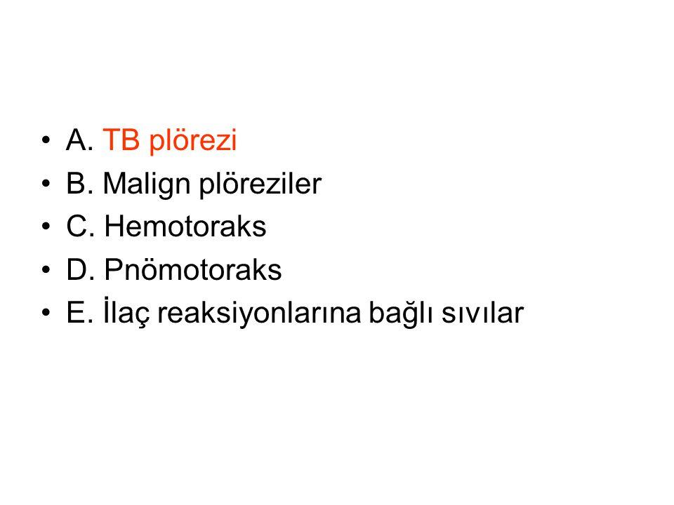 A. TB plörezi B. Malign plöreziler C. Hemotoraks D. Pnömotoraks E. İlaç reaksiyonlarına bağlı sıvılar