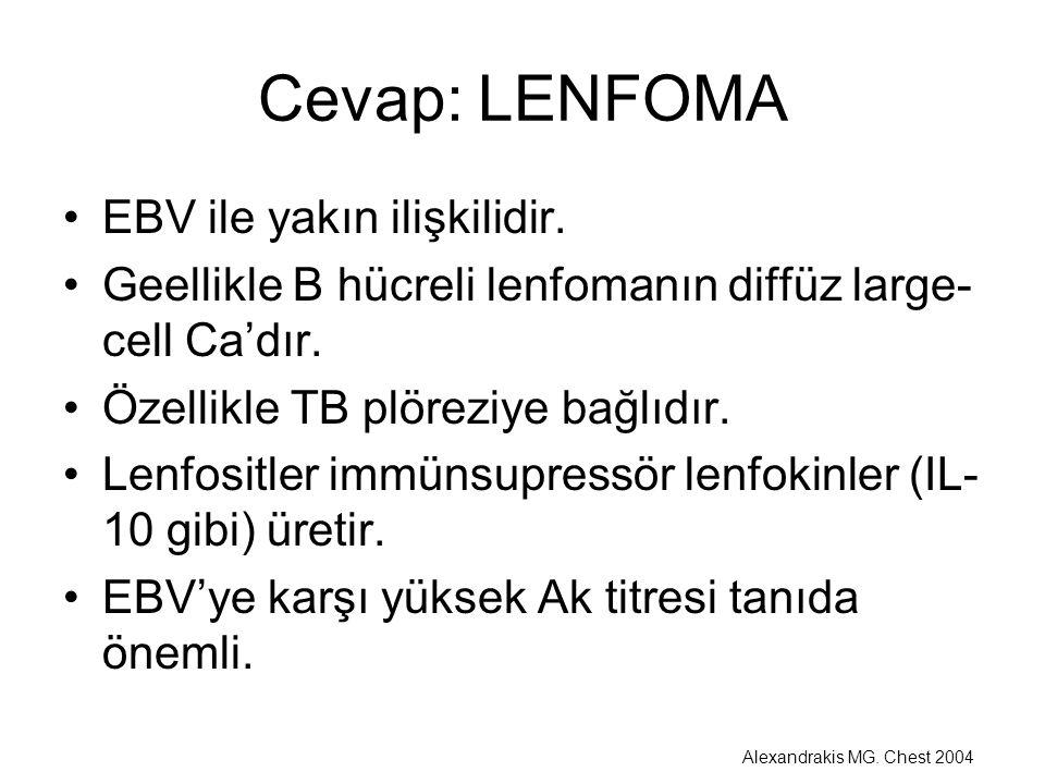 Cevap: LENFOMA EBV ile yakın ilişkilidir. Geellikle B hücreli lenfomanın diffüz large- cell Ca'dır. Özellikle TB plöreziye bağlıdır. Lenfositler immün