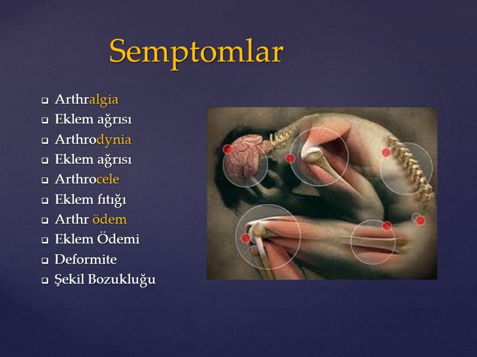 Semptomlar  Arthralgia  Eklem ağrısı  Arthrodynia  Eklem ağrısı  Arthrocele  Eklem fıtığı  Arthr ödem  Eklem Ödemi  Deformite  Şekil Bozuklu