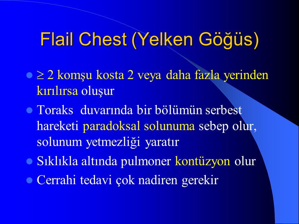 Flail Chest (Yelken Göğüs)  2 komşu kosta 2 veya daha fazla yerinden kırılırsa oluşur Toraks duvarında bir bölümün serbest hareketi paradoksal solunu