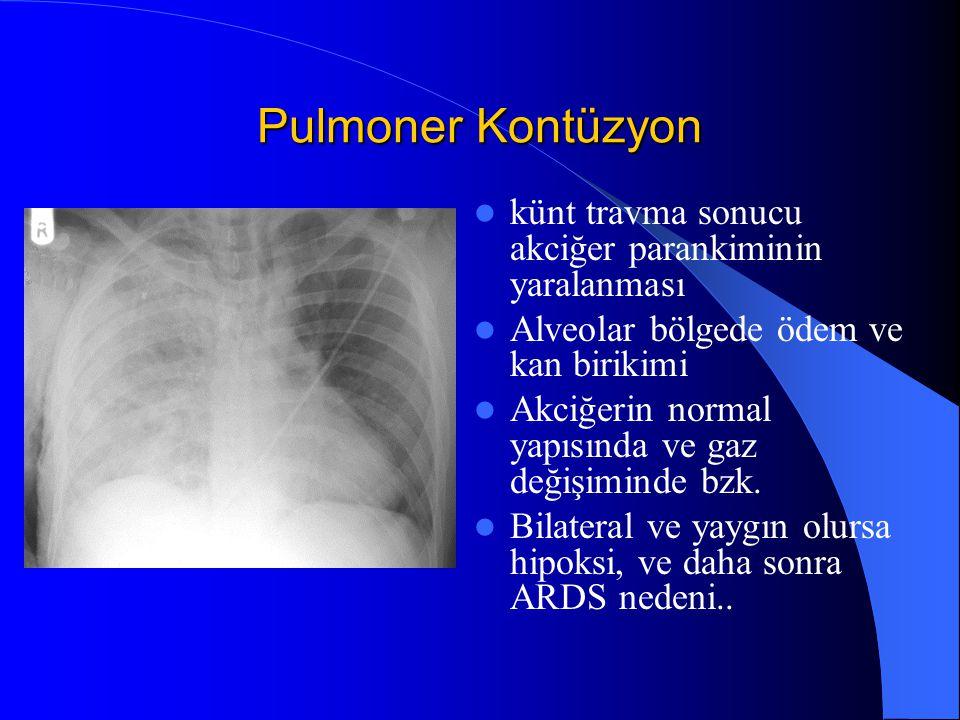 Pulmoner Kontüzyon künt travma sonucu akciğer parankiminin yaralanması Alveolar bölgede ödem ve kan birikimi Akciğerin normal yapısında ve gaz değişim