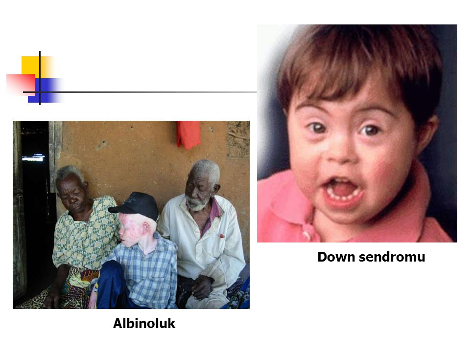 Albinoluk Down sendromu