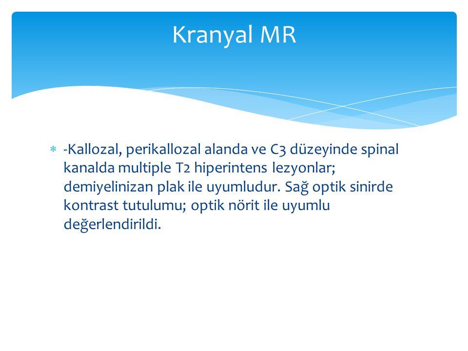  -Kallozal, perikallozal alanda ve C3 düzeyinde spinal kanalda multiple T2 hiperintens lezyonlar; demiyelinizan plak ile uyumludur. Sağ optik sinirde
