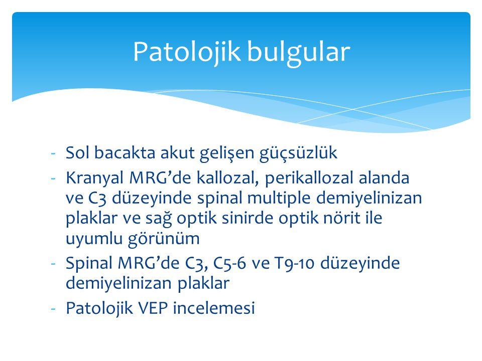 -Sol bacakta akut gelişen güçsüzlük -Kranyal MRG'de kallozal, perikallozal alanda ve C3 düzeyinde spinal multiple demiyelinizan plaklar ve sağ optik s