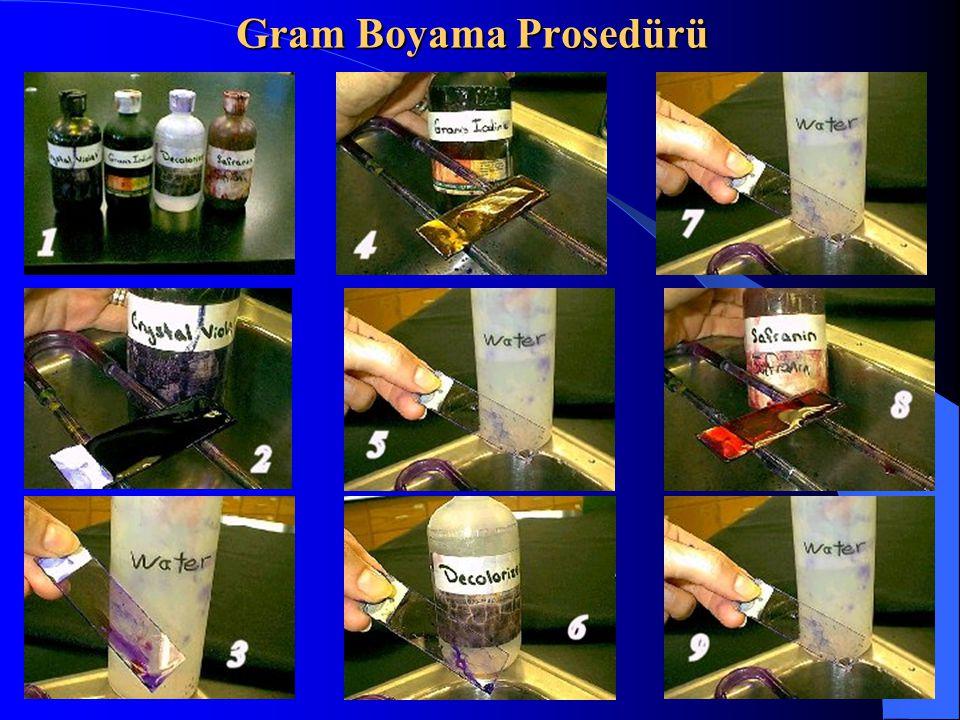 Gram Boyama Prosedürü