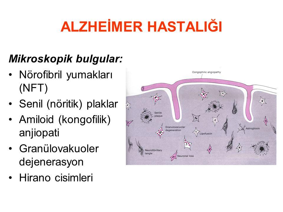 ALZHEİMER HASTALIĞI Mikroskopik bulgular: Nörofibril yumakları (NFT) Senil (nöritik) plaklar Amiloid (kongofilik) anjiopati Granülovakuoler dejenerasy