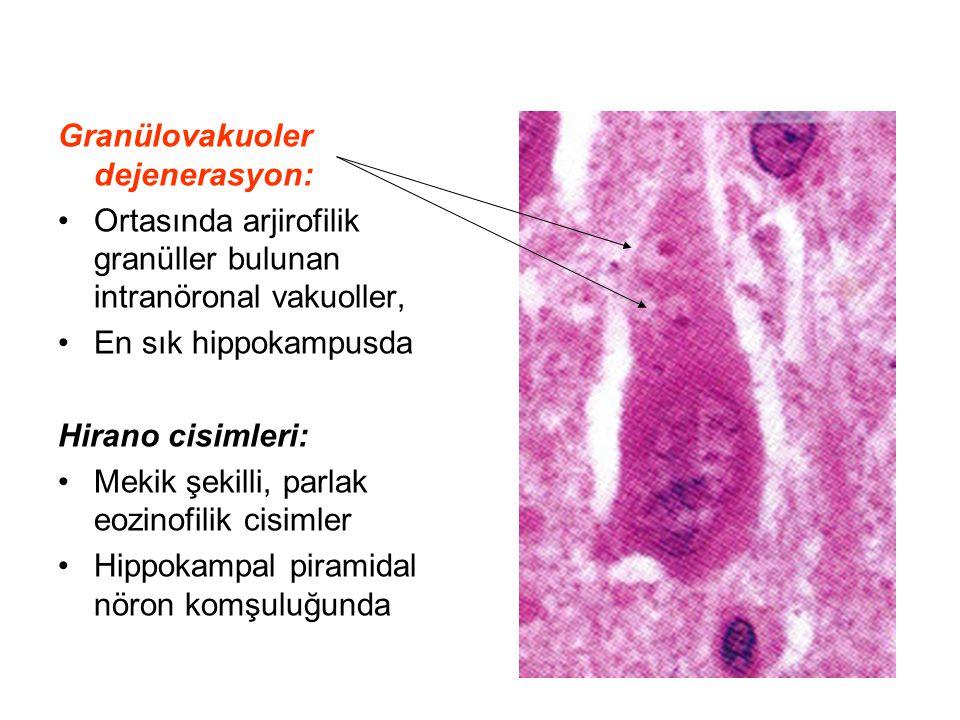 Granülovakuoler dejenerasyon: Ortasında arjirofilik granüller bulunan intranöronal vakuoller, En sık hippokampusda Hirano cisimleri: Mekik şekilli, pa