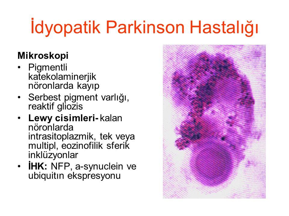 İdyopatik Parkinson Hastalığı Mikroskopi Pigmentli katekolaminerjik nöronlarda kayıp Serbest pigment varlığı, reaktif gliozis Lewy cisimleri- kalan nö