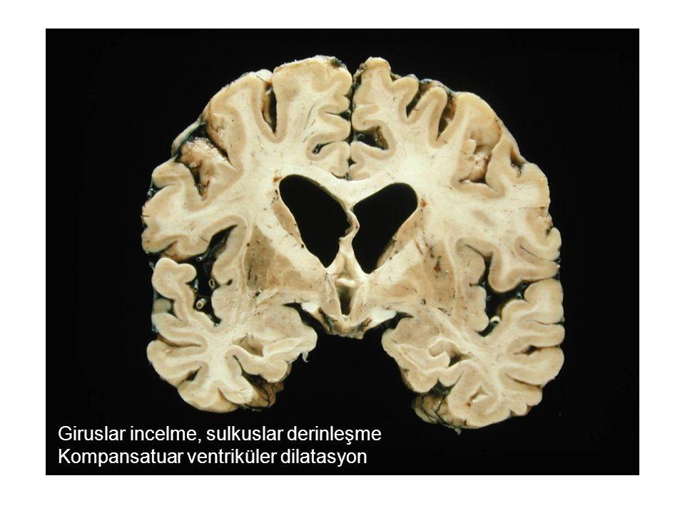 Giruslar incelme, sulkuslar derinleşme Kompansatuar ventriküler dilatasyon