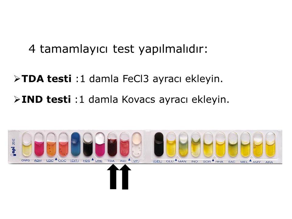 4 tamamlayıcı test yapılmalıdır:  TDA testi :1 damla FeCl3 ayracı ekleyin.  IND testi :1 damla Kovacs ayracı ekleyin.