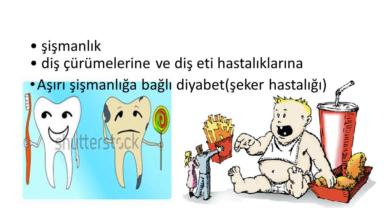 şişmanlık diş çürümelerine ve diş eti hastalıklarına Aşırı şişmanlığa bağlı diyabet(şeker hastalığı)