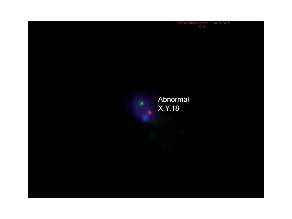 Abnormal: XY18 Abnormal X,Y,18 10.04.2015TKBD-Semen Analizi Kursu 24