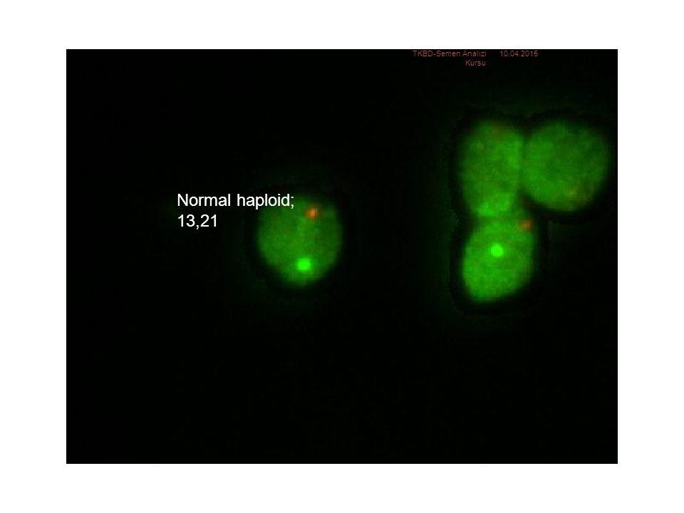 Normal haploid: 13, 21 Normal haploid; 13,21 10.04.2015TKBD-Semen Analizi Kursu 26