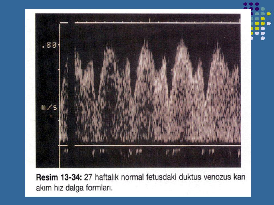 DUKTUS VENOSUS Normal duktus venosus kan akım hızı dalga formu bifazik paterne sahiptir.1.trimestirde ters kan akımı görülebilir.Bu ters akım 2.trimes