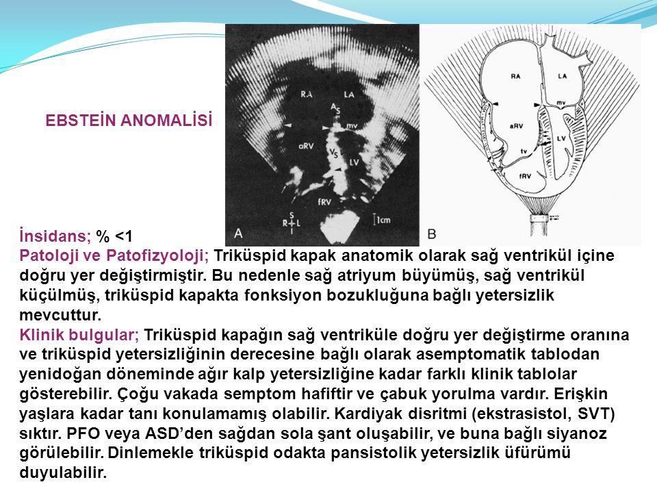 İnsidans; % <1 Patoloji ve Patofizyoloji; Triküspid kapak anatomik olarak sağ ventrikül içine doğru yer değiştirmiştir. Bu nedenle sağ atriyum büyümüş