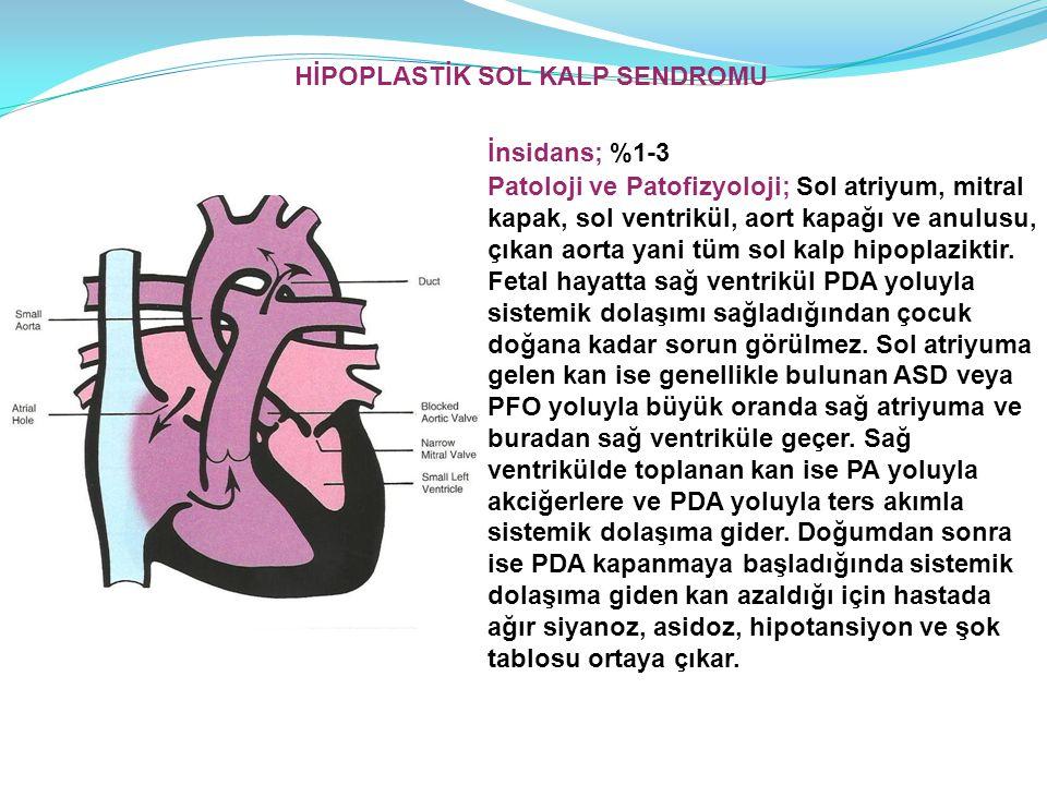 İnsidans; %1-3 Patoloji ve Patofizyoloji; Sol atriyum, mitral kapak, sol ventrikül, aort kapağı ve anulusu, çıkan aorta yani tüm sol kalp hipoplazikti