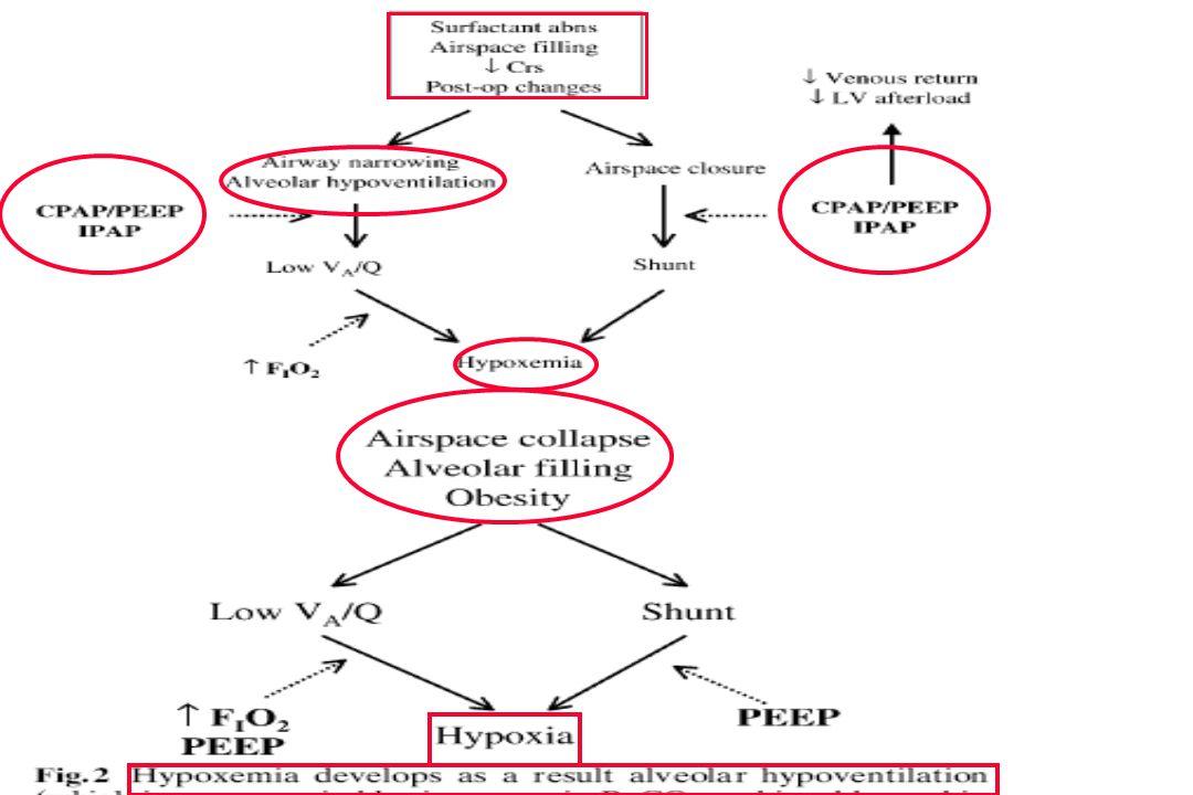54 Endotrakeal entübasyon sıklıkla şu durumlarda gerekir:  Ciddi ve uzamış hipoksi  Yüksek FiO 2 ye uzamış ihtiyaç, oksijene bağımlılık  Yüksek PEEP'e uzamış ihtiyaç  Pulmoner rekuritment manevralarına gereksinim olması  Bronşlarda hipersekresyon, sekresyonların atılmasında yetersizlik  Hemodinamik instabilite  Komplikasyonlar (sepsis, multipl-organ yetersizliği vb.) Hipoksik Solunum Yetersizliği