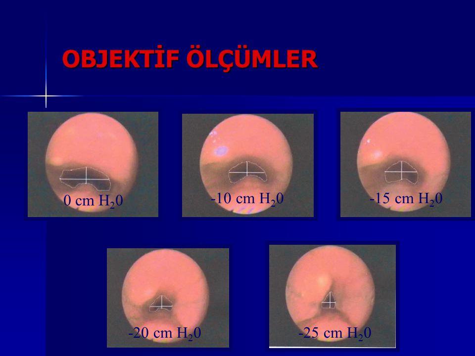 0 cm H 2 0 -10 cm H 2 0-15 cm H 2 0 -20 cm H 2 0-25 cm H 2 0